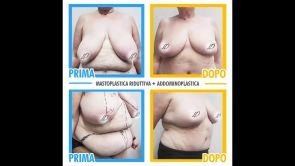 Mastoplastica Riddutiva - Dr. Pietro Loschi