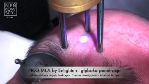 Odmładzanie i ujędrnianie skóry laserem Cutera® EnlightenTM MLA