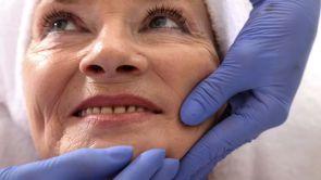 Le lifting cervico-facial avant et après