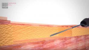 Nutacyjna liposukcja infradźwiękowa