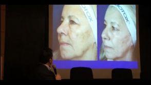 Láser y Luz Pulsada en el Tratamiento de las Lesiones Pigmentarias Benignas Cutáneas