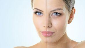 Jak się pozbyć bruzd nosowo-wargowych i lwich zmarszczek?