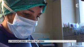 Chirurgie de la fente labiopalatine technique COULY