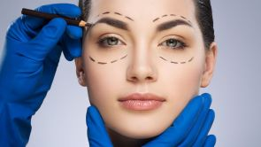 Blefaroplastia Estética o Cirugía estética de los párpados