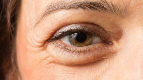 Oczy jako zwierciadło duszy - o korekcji okolicy oczu i plastyce powiek
