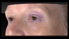 Augenlidchirurgie in der Klinik am Rhein