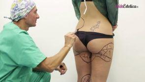 La liposuzione col chirurgo plastico Dott. Lauro