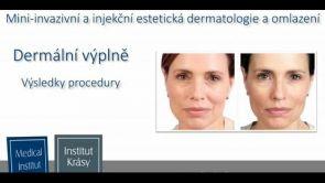 Mini-invazivní estetická dermatologie