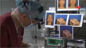 Dr. Robert Pavelka Nasenkorrektur Teil 3 - Die Nasenoperation