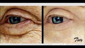 Momento ideal para hacerse una Cirugía de cara