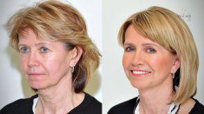 PROMĚNA: Plastická operace obličeje - Facelift a víčka - paní Zdena na Klinice YES VISAGE