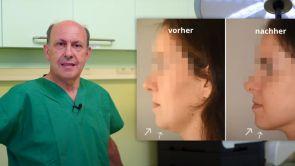 Kinnkorrektur in Wien - zu großes oder fliehenden Kinn? | Dr. Turkof