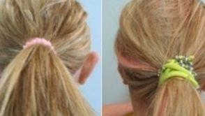 Soluzioni chirurgiche per le orecchie a sventola: pro e contro