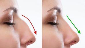 Otevřená operace nosu (rhinoplastika)