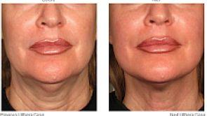 Ulthérapie – Ultrasons intelligents qui comprennent votre peau