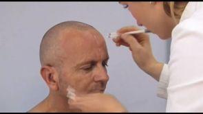 Presadjivanje kose FUE metodom u Poliklinici Dr. Maletić