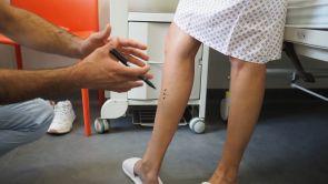 Křečové žíly na nohou a na rodidlech v těhotenství. Co s nimi?