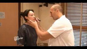Rajeunissement du visage par lifting cervico-facial et lipofilling