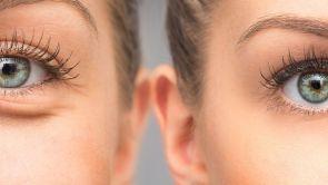 Otoplastia o Cirugía estética de las orejas