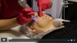 Niechirurgiczny lifting twarzy - radiofrekwencja mikroigłowa Scarlet RF
