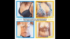 Mastoplastica additiva - Dr. Pietro Loschi