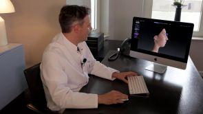 Das 3D Kamerasystem und die Nasenkorrektur