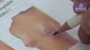 Modelace prsou na klinice Aestea