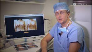 Jak vypadají a kde jsou vedené jizvy po modelaci prsou?