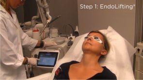 Fotona 4D dostępny w warszawskiej klinice Revival Clinic