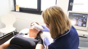 Ultherapy - die nicht-invasive Hautstraffung und Hautglättung mit fokussiertem Ultraschall