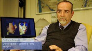 Rinoplastica - chirurgia naso