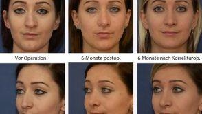 Heilungsverlauf nach einer Nasenkorrektur