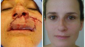 Potrhaný obličej po incidentu se psem a stačila jen jedna operace