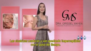 Rinoplastia (Cirugia de la nariz) - Dra Grissel Mayen
