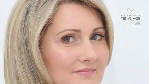 Paní Emília - Korekcia očných viečok na Klinike YES VISAGE
