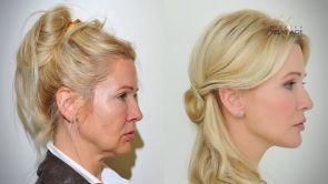 Plastická operace obličeje - Facelift a YES Lifting