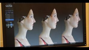 VECTRA 3D w Szpitalu LUX MED