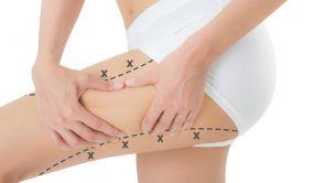 Werden Sie Cellulite-Dellen für immer los!