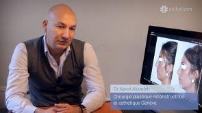 Quels sont les résultats de la rhinoplastie ?