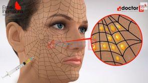 Spider Web Technique 3D