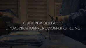 Body Remodelage : Lipoaspiration - Renuvion - Lipofilling