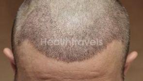 Haartransplantation: Wann fallen die Krusten ab?