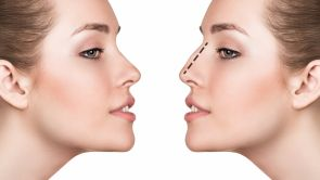 Not an Open-Or-Shut-Case - Open Rhinoplasty vs. Closed Rhinoplasty