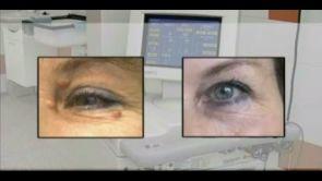 Odstranění kožních defektů