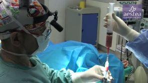 Přenos tuku na klinice Aestea