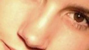 Wie bekommt man eine schöne, kleine Nase?
