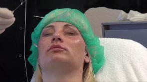 Fadenlift und Lippenunterspritzung bei Dr. Gleichmann