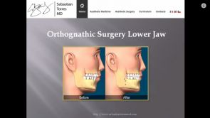 Orthognathic Surgery Lower Jaw