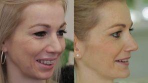 Jak stvořit krásný obličej se dá spočítat, říká maxilofaciální chirurg z Perfect Clinic