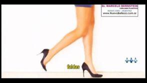 Protesis de Pantorrilla, Implantes de Piernas